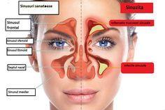 Probleme cu sinusurile? Uite tratamentele naturale care te vor scapa de infectie!