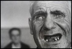 James Nachtwey - Romania - The face of an institutionalized man (1990)