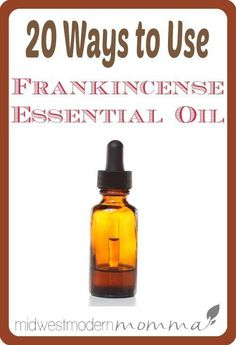 Frankincense is great for so many things, like dental pain, immune support, & stretch marks. Here are my favorite 20 Frankincense Essential Oil Uses!