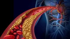 arteriasobstruidas