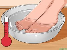 3 Ways to Get Rid of Bunions - wikiHow