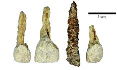 An iron tooth implant fitted about 2,300 years ago has been found in the grave of a young woman in northern France. Archaeologists believe i...