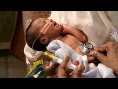 Inserción de una sonda gástrica - Cuidado del recién nacido - YouTube