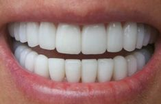 [ VIDEO ] Make Your Teeth White At Home After Only 3 Minutes. A 100% Proof Of Efficacy