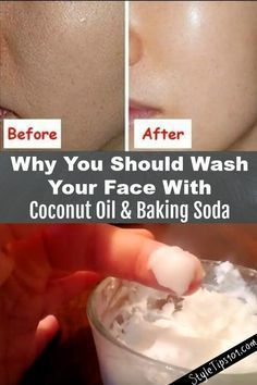This baking soda and coconut oil face mask for acne scars will deeply cleanse the skin, exfoliate, and prevent acne all in one! You've undoubtedly seen tons of baking soda and coconut oil face mask recipes all over the Internet, but have you actually Baking With Coconut Oil, Coconut Oil For Face, Coconut Oil Hair Mask, Coconut Oil Beauty, Coconut Oil Face Cleanser, Coconut Oil Scars, Coconut Oil Skin, Coconut Oil Benefits, Coconut Oil Makeup Remover