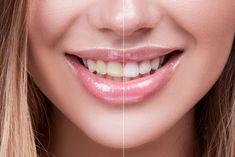 فرآیند بلیچینگ یاسفید کردن دندان، عملی است که باعث روشن شدن رنگ دندان میشود. سفید کردن دندان با تغییر رنگ ذاتی دندان و یا از بین بردن و کنترل شکلگیری لکههای بیرونی حاصل میشود. تخریب شیمیایی کروموژن ها در داخل یا روی دندان، سفید کردن دندان نامیده میشود. Best Teeth Whitening Kit, Natural Teeth Whitening, Coconut Oil For Teeth, Dental Bridge, Cosmetic Dentistry, Like4like, Skin Care, Healthy Teeth, Beautiful Smile