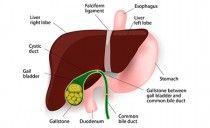 Gallensteine verhindern