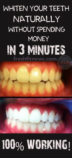 Whiten Your Teeth Naturally Without Spending Money In 3 Minutes