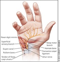 Evaluation and Diagnosis of Wrist Pain: A Case-Based Approach - - American Family Physician Occupational Therapy, Physical Therapy, Wrist Anatomy, Hand Surgery, Wrist Pain, Musculoskeletal System, Medical Anatomy, Muscle Anatomy, Carpal Tunnel