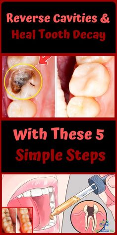 The teeth, just like any other part of your body, require your attention and proper care. Tooth decay is a major problem people deal with at one point in life. cavities can make life uncomfortable Teeth Health, Healthy Teeth, Oral Health, Dental Health, Reverse Cavities, Remedies For Tooth Ache, Homemade Toothpaste, Heal Cavities, How To Prevent Cavities