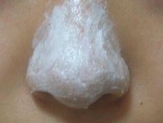 あの有名なオロナインが表示された効能以外にも様々に活躍してくれると話題!その中でもこの記事では、オロナイン鼻パックのやり方・注意点について詳しくまとめてみました。私も実践して今までの悩みはなんだった?!ってくらい感動的に効果があったオロナイン鼻パック。ぜひお試しあれ♡