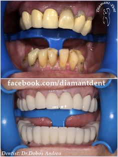 Thirsty Dental Care Tips Baking Soda Dental Care, Smile Dental, Smile Teeth, Dental Bridge, Dental Crowns, Cosmetic Dentistry, Teeth Whitening, Tooth Bridge, Baking Soda