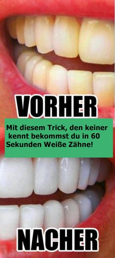 With this trick that nobody knows, you get in 60 seconds .- Mit diesem Trick, den keiner kennt bekommst du in 60 Sekunden Weiße Zähne! With this trick that nobody knows, you get white teeth in 60 seconds! Get Whiter Teeth, Receding Gums, White Teeth, Teeth Whitening, Beauty Routines, Makeup Yourself, You Nailed It, Health Tips, Beauty Hacks