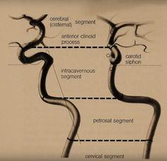 Arteries Anatomy, Internal Carotid Artery, Interventional Radiology, Human Anatomy And Physiology, Medical Art, Cardiology, Ultrasound, Dentistry, Surgery