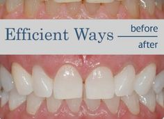 Efficient Ways to Whiten your Teeth at Home