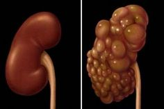 Medicamentul natural care topește chisturi de pe ficat, plămâni, rinichi, ovare