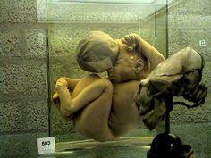 [DEEP WEB] Bem vindos ao Museu Vrolik(CUIDADO, IMAGENS FORTES!)5