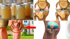 Este jarabe tiene loco a los médicos porque reconstruye los huesos y quita el dolor articular