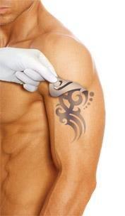 Un láser especial actúa en la estructura molecular del tinte del tatuaje capa a capa, decolorándolo visiblemente. A los pocos meses del tratamiento las huellas del tinte se eliminan del organismo de forma natural. La piel queda limpia y sana, sin cicatrices y es indoloro. Los resultados son visibles al mes de la primera sesión. La cantidad de sesiones dependerá de la profundidad y el color del tinte. También se puede aplicar al maquillaje permanente (micropigmentación)