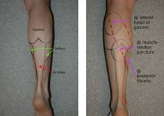 Warning Signs for Achilles Problems