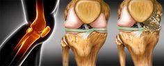 Una nutrición apropiada es crucial para la prevención de casi todos los problemas relacionados con las articulaciones y tus rodillas, como regenerarlas?