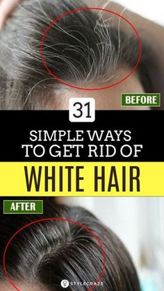 31 Simple Ways To Get Rid Of White Hair At A Young Age: How can any youngster get rid of white hair? Are there any home remedies for white hair in young age? Well, there are! And that is what this post is all about! Read on and get to know of the ways in which you can prevent premature hair whitening! #Remedies #HomeRemedies #Haircare #BeautyTips