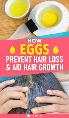 How Eggs Prevent Hair Loss And Aid Hair Growth: Did you know that an ingredient as easily available as eggs could be the answer to your problems? Not only do eggs help curb and prevent hair loss, but they are also an excellent hair growth aid. Normal Hair Loss, Why Hair Loss, Hair Loss Cure, Prevent Hair Loss, Argan Oil For Hair Loss, Best Hair Loss Shampoo, Biotin For Hair Loss, Biotin Hair, Hair Shampoo