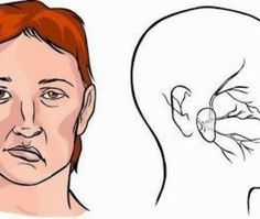 A Few Days Before The Stroke Our Body Warns Us - 7 Signals For Approaching Stroke: - The Real Healthy Thing Severe Headache, Interesting Information, Natural Health Remedies, Our Body, Pain Relief, Health And Beauty, Herbalism, Health Fitness, How Are You Feeling