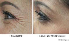 Botox for treatment of wrinkles around the eyes known as crow's feet. Photos show wrinkles before botox treatment and 3 weeks after injection with Botox Cosmetic by Dr. Zadeh