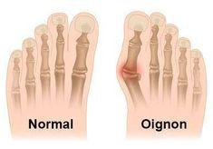 ¿Qué es un Juanete o Hallux Valgus? Natural Treatments, Natural Remedies, Bunion Exercises, Tailors Bunion, Bunion Pads, Bunion Surgery, Podiatry, Foot Pain, Feet Care