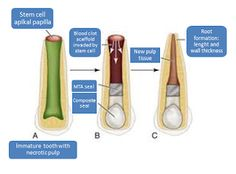 World Congress on Advanced Biomaterials and Tissue Engineering: Tissue engineering in Endodontics :   The vitality...