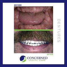 #Smilemakeover by Concerned Dental Care with #dentures #justsmile #dentist #beforeandafter #whiteteeth #smile