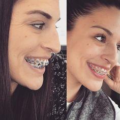 Teeth Braces Cost, Braces Tips, Braces Colors, Dental Braces, Cute Girls With Braces, Cute Braces, Braces Problems, Gadgets, Dental Health