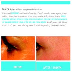 Rodan + Fields gives you the best skin of your life and the confidence that comes with it. Created by Stanford-trained Dermatologists, we understand skin. Our easy-to-use Regimens take the guesswork out of skincare so you can see transformative results. Rodan And Fields Redefine, Eye Cream, Good Skin, Skin Care, Eyes, Eye Creams, Skincare Routine, Skins Uk, Skincare
