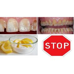 how to clean your teeth with baking soda and lemon