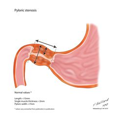 Hypertrophic pyloric stenosis refers to idiopathic thickening of gastric py­loric musculature which then results in progressive gastric outlet obstruction. Treatment is surgical with a pyloromyotomy in which the pyloric muscle is divided down to the submucosa. This can be performed both open and laparoscopically. http://radiopaedia.org/articles/pyloric-stenosis