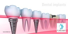 Dental implants are replacement tooth roots. Implants provide a strong foundation for fixed (permanent) or removable replacement teeth that are made to match your natural teeth. For More : http://drnilesh.com/