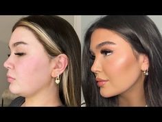 Double Chin Surgery, Chin Liposuction, Double Chin Removal, Chin Filler, Facial Procedure, Pretty Nose, Face Fillers, Face Contouring, Light Hair