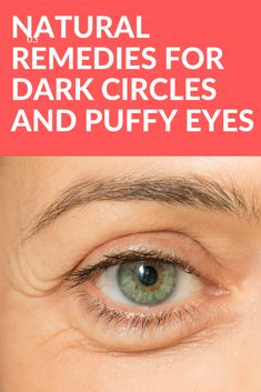 Natural Remedies for Puffy Eyes and Dark Circles - About Eye Floaters Skin Care Remedies, Natural Remedies, Dark Circle Remedies, Eyeshadow For Blue Eyes, Best Eye Cream, How To Apply Eyeliner, Puffy Eyes, Skin Firming, Skin Problems
