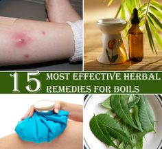 15 Most Effective Herbal Remedies For Boils | Heart Craft