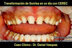 Caso Clínico: Transformación de Sonrisa en un día con CEREC | Odonto-TV
