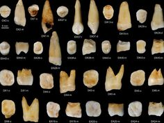 Some of the 47 human teeth discovered in the Fuyan Cave of China's Hunan province, dating back more than years. Picture: S. Xing/Nature via AP Fresco, Human Teeth, Science Art, Tooth Fairy, Dentistry, Decay, Art Reference, La Mastication, China