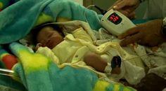 Freeplay Fetal Heart Rate Monitor