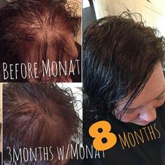 Wow!  Monat rocks hair growth with safe,vegan, botanically based hair products!  $99 to get results! More info @regrowmyhair1@gmail  www.regrowmyhair.mymonat.com