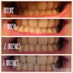 Pasta de dinti pentru albire 😁  😍Albeste fara peroxizi si fara clor 😍Lupta impotriva depunerilor de tartru 😍Are gust placut de vanilie-menta Pentru detalii contactati-ma!