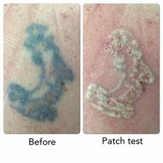 Patch Test Done On This One Newskin Wrexham Tattooremoval