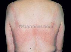 Skin disease: Natural Rubber Latex Allergy