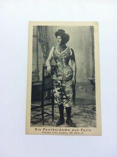 Postcard Spotted Girl Jrma Loustau Paris Circus Sideshow Freak   eBay Panther, Sideshow Freaks, Human Oddities, Flotsam And Jetsam, Fun House, Paris, Vintage Images, Creepy, History