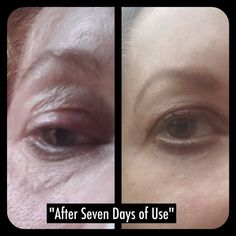 anti aging secret serum see more at sozolife.com/teamignite