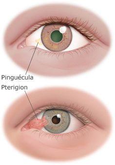 Iridology Chart, Eye Medicine, Ear Anatomy, Optometry Office, Eye Facts, Human Eye, Medical Information, Anatomy And Physiology, Alternative Health